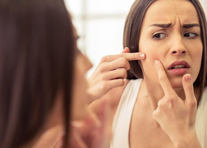magnétiseur , bien-être , soin, problème de peau , acné, eczéma , médecine douce, médecine alternative